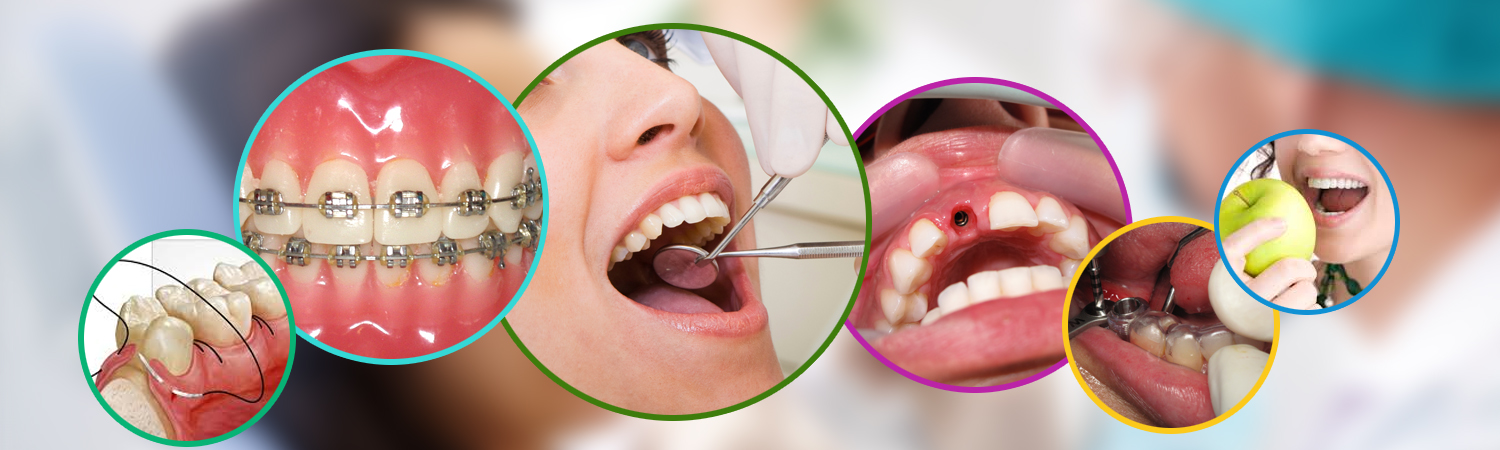 dental services in Bangalore