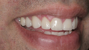 best Cosmetic Dentistry in bangalore