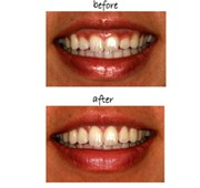 top dental care in koramangala