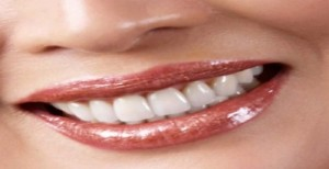 affordable Cosmetic Dentistry in Bangalore